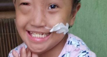 Bantu Haura Sembuh dari Tumor Mata