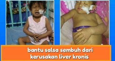 Salsa, Putri Kecil Pejuang Alagille Syndrome