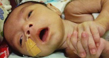 Bantu Aprilia Operasi Jantung ke Jakarta