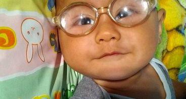 Bantu Uwais Pejuang Congenital Rubella Syndrome