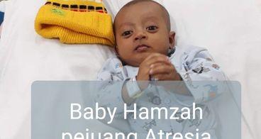 Bantu baby hamzah melawan Atresia Bilier