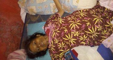 Bantu ibu saya Operasi Tumor Ovarium