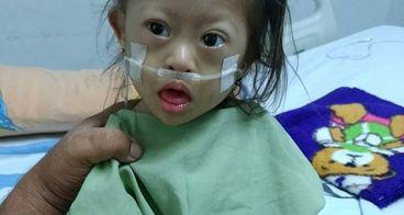bantu hanifa jantung bocor (down syndrome)