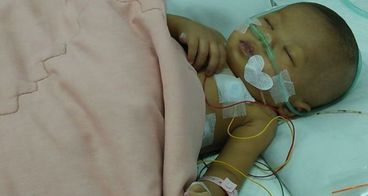 Bantu Nadya untuk Atresia Bilier dan Jantung