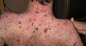 Bantu Amin berjuang dengan Epidermis Bulosa