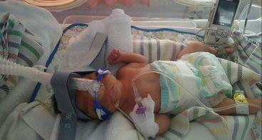 Bantu baby AL bertahan hidup