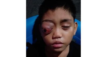 Bantu Arman melawan tumor di mata