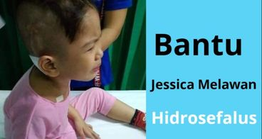 Bantu Jessica Untuk Operasi Hidrosefalus