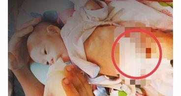 Bantu Siti Fadilla, Bayi Mungil Tanpa Anus
