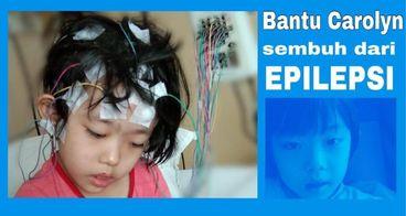 Bantu Carolyn yang epilepsi, bedah syaraf otak