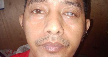 bantu ayah juanda mengganti kornea mata