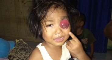 Bantu Khalila Anjani melawan kangker mata