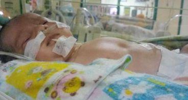 Revand Bayi Prematur mengalami Bocor Jantung