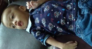 Duta melawan Epilepsi + Cerebral palsy, gizi buruk