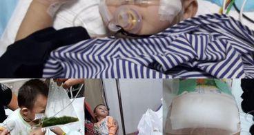 Bantu Leo operasi penutupan kolostomi dan infeksi