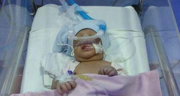 Bantu Bayi Syifa Melawan Penyakit Paru-paru