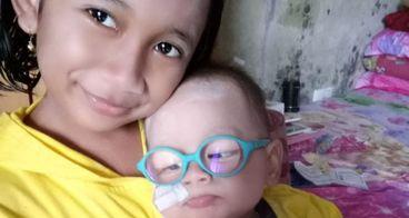 Bantu Yusuf melawan Sindrom Rubella