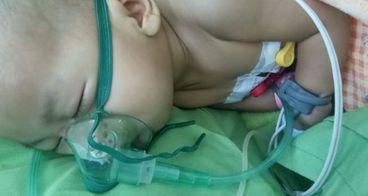 Bantu Diba Melawan Bronkopneumonia/Komplikasi paru