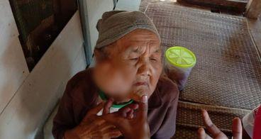 Bantu Uminah, Nenek Sebatang Kara, Kalahkan Tumor