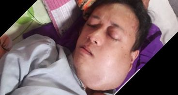 Bantu Ridwan melawan tumor