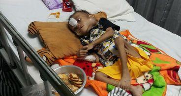 Bantu Kadek Arvan bisa sembuh dari sakit