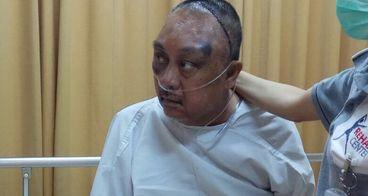 Bantu Pak Samad dalam melawan tumor otak
