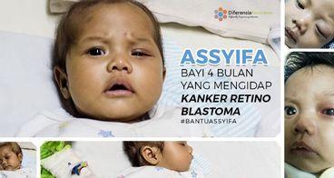 Bantu Assyifa Lawan Retinoblastoma