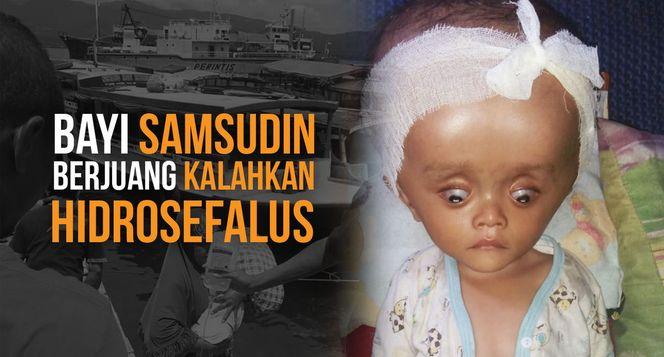 Bantu Samsudin Kalahkan Sakitnya Hidrosefalus