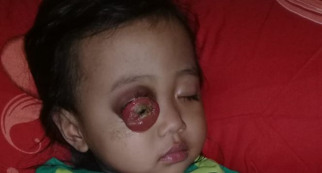 Bantu Neng Rahma binti Sarju melawan kanker mata