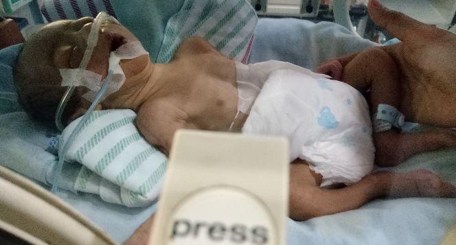 Bantuan Baby Zidan yang dalam perawatan NICU