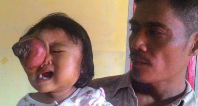 Bantu adik Hafiza untuk Sembuh