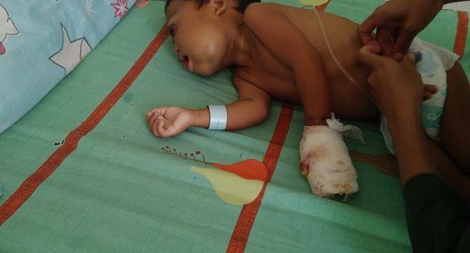 Bantu bayi Ridho melawan tumor