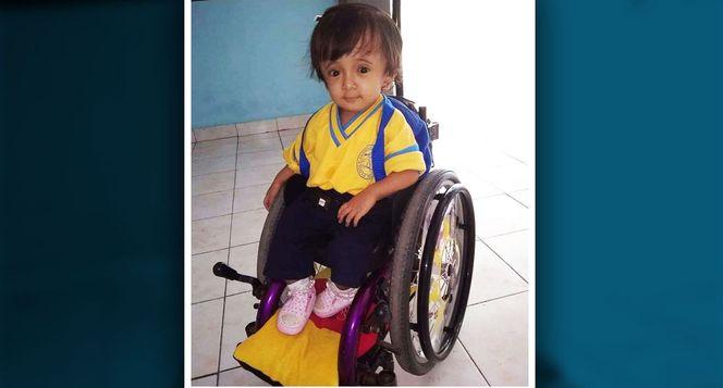 Bantu Fatimah Pejuang OI untuk operasi