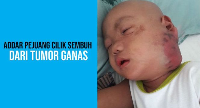 Bantu Addar melawan tumor ganas