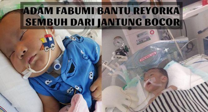 Adam Fabumi Bantu Adek Reyorka dari Jantung Bocor
