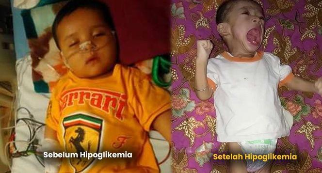 Bantu Bayi Adam Lawan Hipoglikemia
