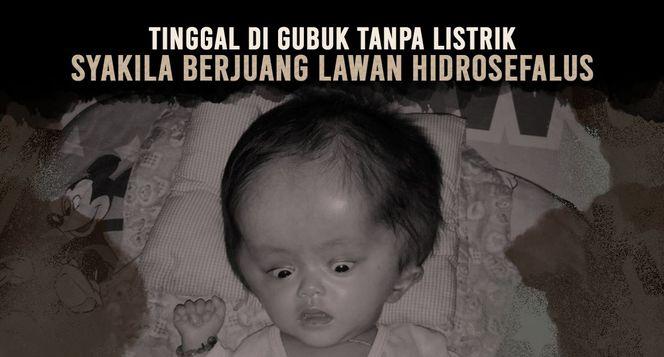 Bantu Syakila Sembuh dari Hidrosefalus