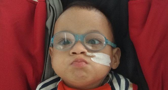 Arav sang Pejuang Congenital Rubella Syndrome
