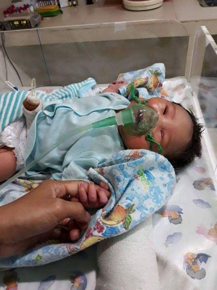 Baby Reyhan Sebelum Di Operasi